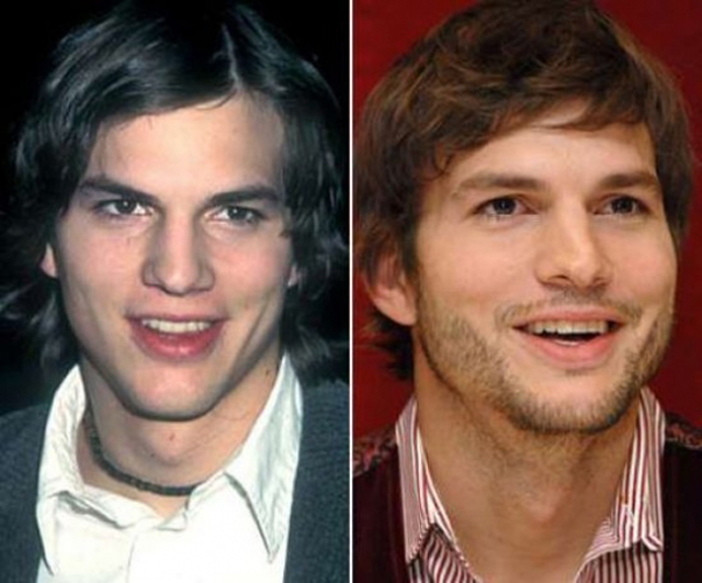 Ashton Kutcher Nose Job Plastic Surgery Before and After