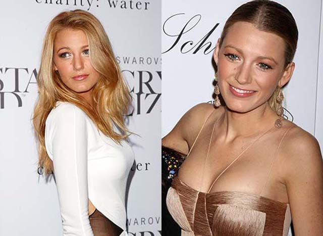 Blake Lively Breast Implants Plastic Surgery Before and After