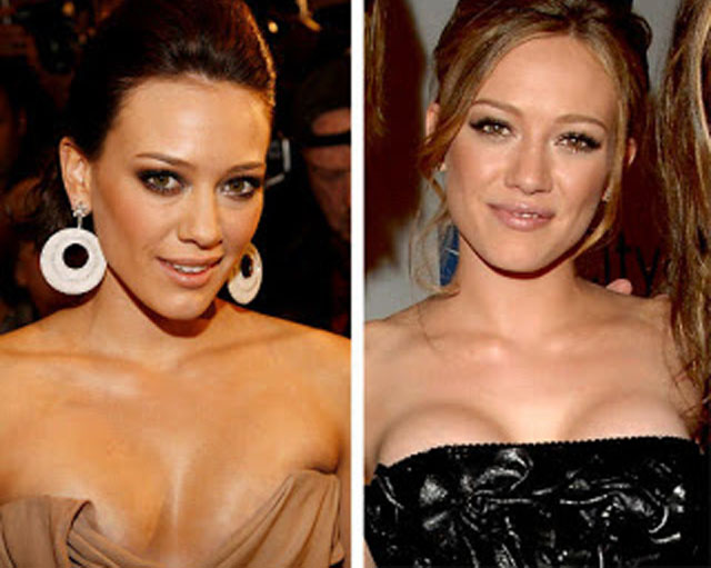 Hilary Duff Breast Implants Plastic Surgery Before and After