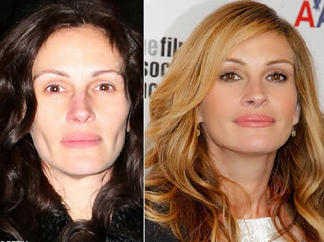 Julia Roberts Plastic Surgery Before and After