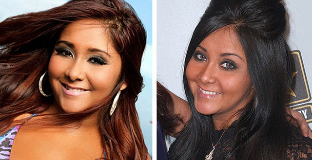 Snooki Plastic Surgery Before and After