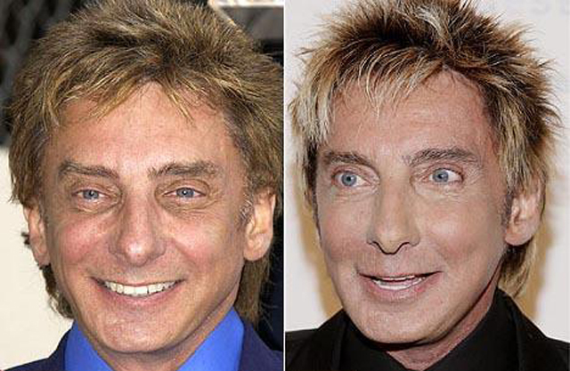 Barry Manilow Facelift Plastic Surgery Before and After