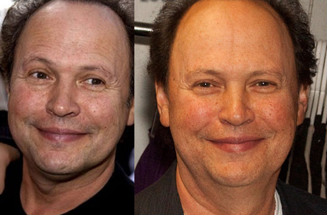 Billy Crystal Facelift Plastic Surgery Before and After