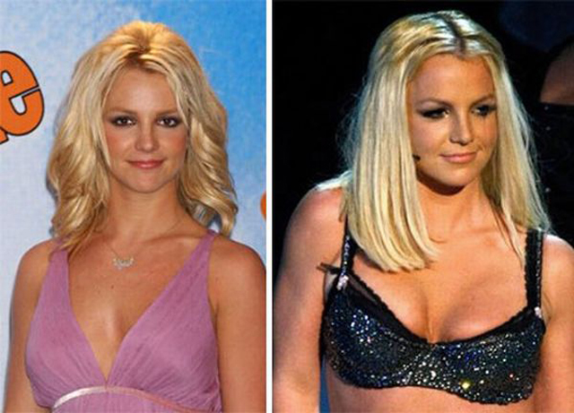 Britney Spears Liposuction