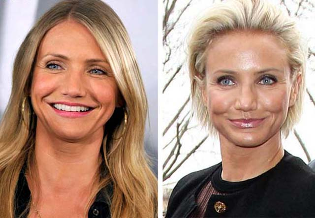 Cameron Diaz Nose Job Plastic Surgery Before and After