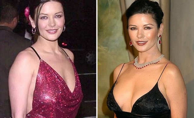 Catherine Zeta Jones Breast Implants Plastic Surgery Before and After