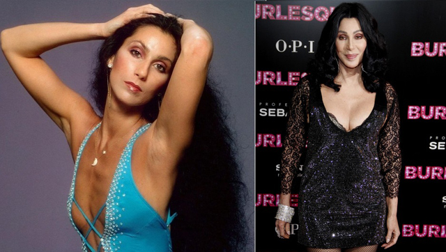 Cher Breast Implants Plastic Surgery Before and After