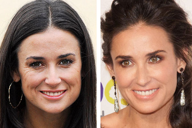 Demi Moore Facelift Plastic Surgery Before and After