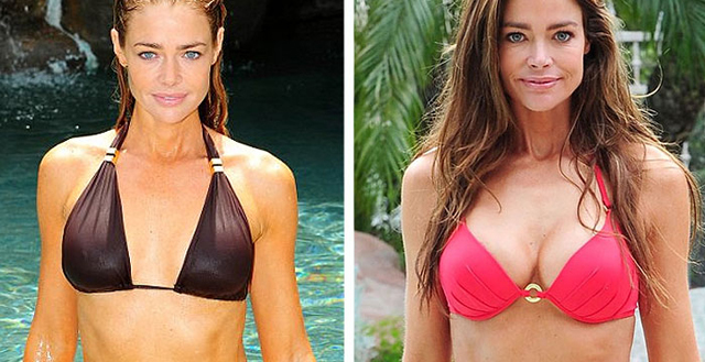 Denise Richards Breast Implants Plastic Surgery Before and After