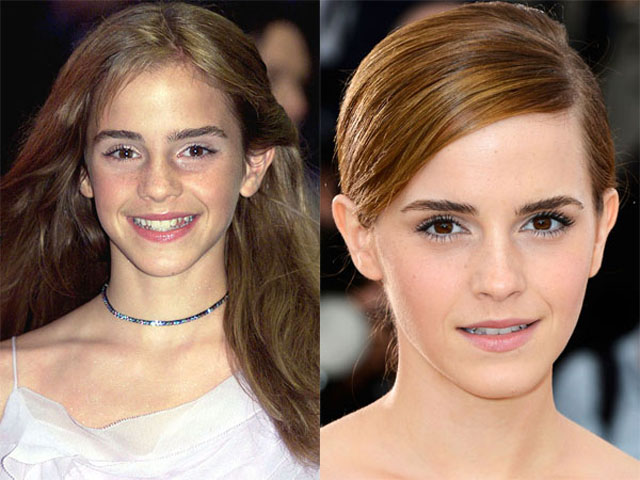 Emma Watson Nose Job Plastic Surgery Before and After