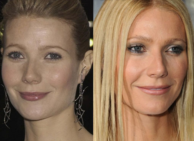 Gwyneth Paltrow Nose Job Plastic Surgery Before and After