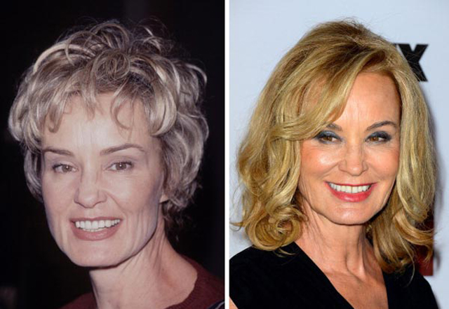 Jessica Lange Plastic Surgery Before and After Botox Injections