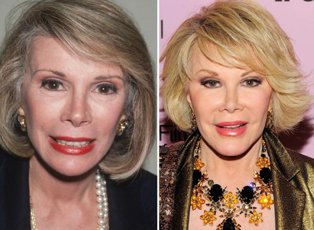 Joan Rivers Facelift Plastic Surgery Before and After