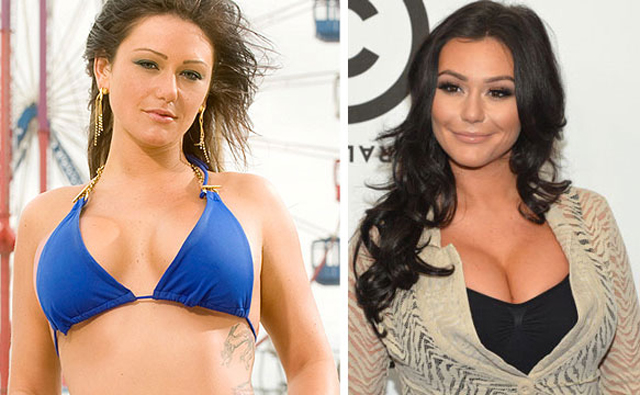 JWoww Breast Implants Plastic Surgery Before and After