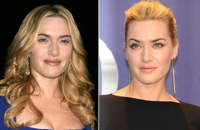 Kate Winslet Nose Job Plastic Surgery Before and After