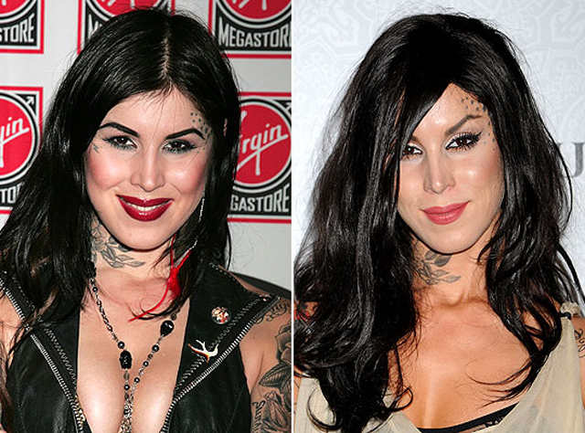 Kat Von D Nose Job Plastic Surgery Before and After