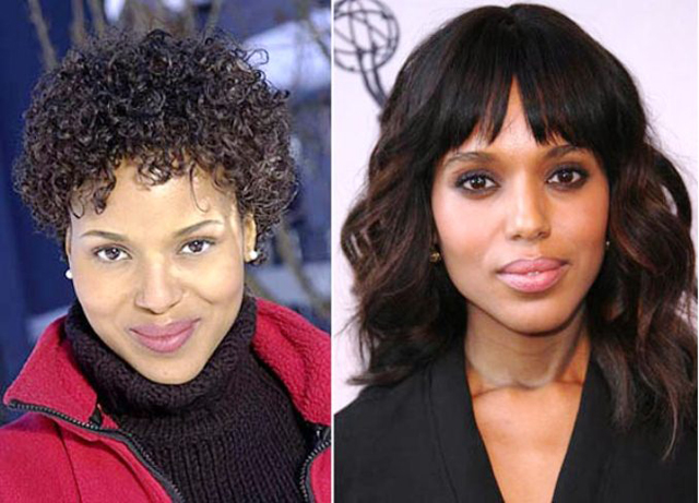 Kerry Washington Nose Job Plastic Surgery Before and After