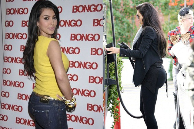 Kim Kardashian Buttock Implants Plastic Surgery Before and After