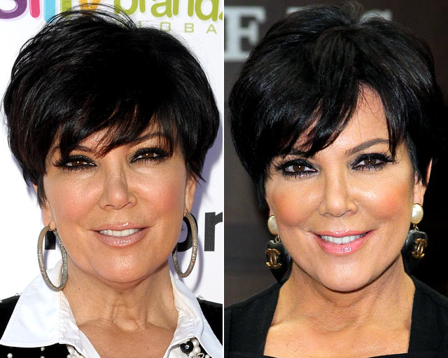 Kris Jenner Nose Job Plastic Surgery Before and After
