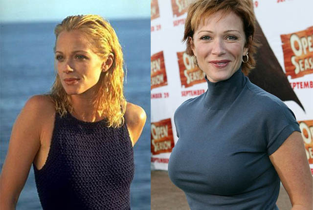 Lauren Holly Breast Implants Plastic Surgery Before and After