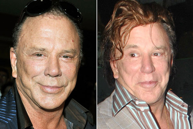 Mickey Rourke Facelift Plastic Surgery Before and After
