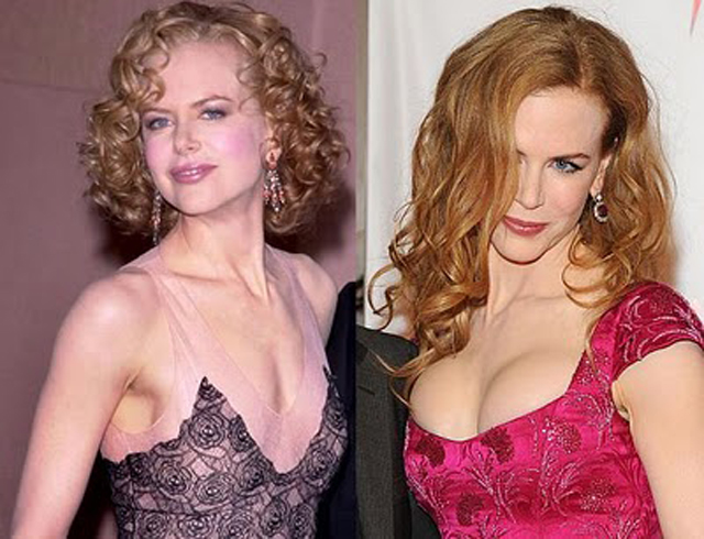 Nicole Kidman Breast Implants Plastic Surgery Before and After