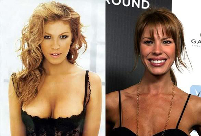 Nikki Cox Lip Augmentation Plastic Surgery Before and After