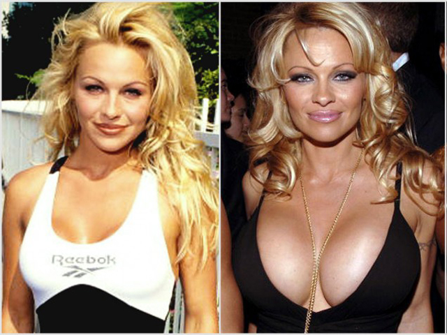 Pamela Anderson Breast Implants Plastic Surgery Before and After