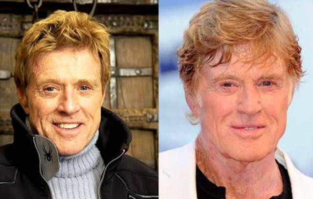 Robert Redford Facelift Plastic Surgery Before and After