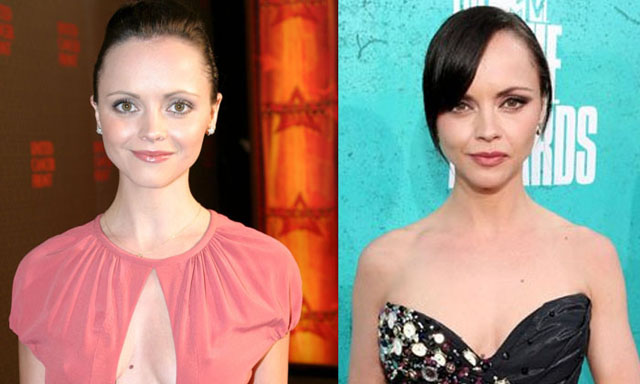 Christina Ricci Nose Job Plastic Surgery Before and After
