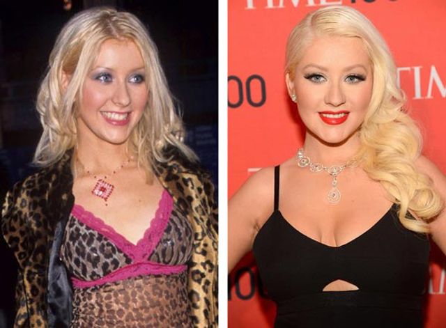 Christina Aguilera Breast Implants Plastic Surgery Before and After