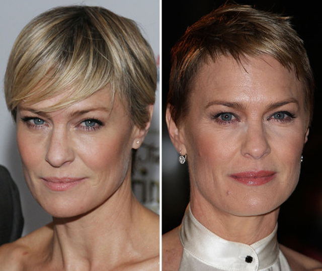 Robin Wright Plastic Surgery Before and After Botox