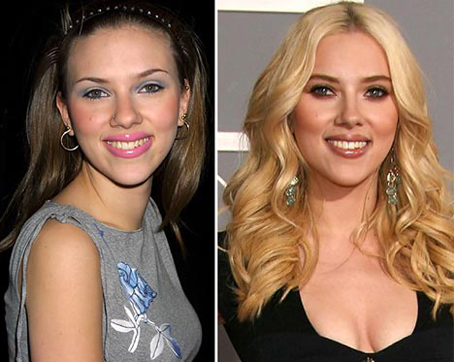 Scarlett Johansson Nose Job Plastic Surgery Before and After