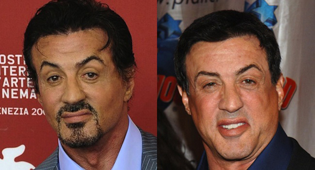 Sylvester Stallone Facelift Plastic Surgery Before and After