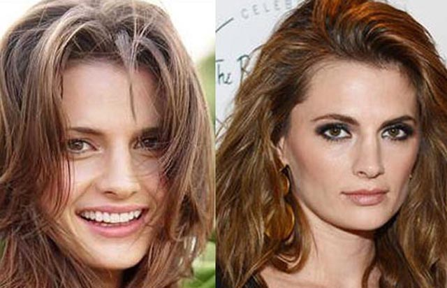 Stana Katic Nose Job Plastic Surgery Before and After