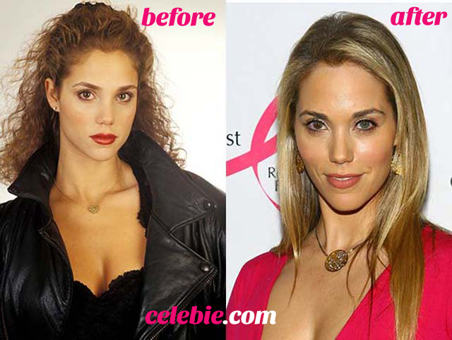 Elizabeth Berkley Nose Job Plastic Surgery Before and After