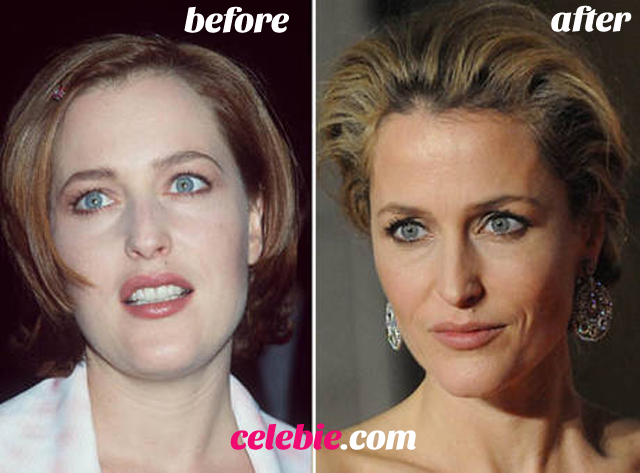 Gillian Anderson Plastic Surgery Before and After Botox Injections