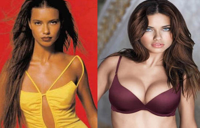 Adriana Lima Breast Implants Plastic Surgery Before and After