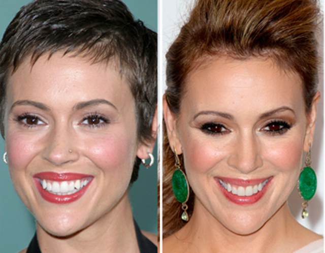 Alyssa Milano Plastic Surgery Before and After Botox Injections