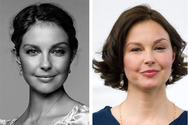 Ashley Judd Plastic Surgery Before and After Botox Injections