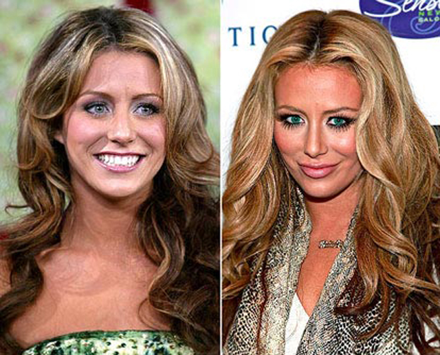 Aubrey O'Day Lip Augmentation Plastic Surgery Before and After