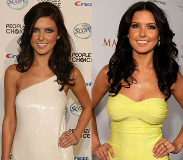 Audrina Patridge Breast Implants Plastic Surgery Before and After