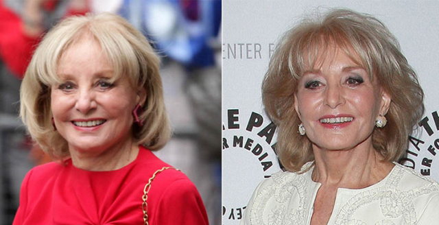 Barbara Walters Facelift Plastic Surgery Before and After