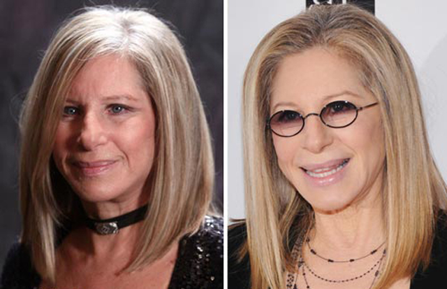 Barbra Streisand Plastic Surgery Before and After Botox Injections