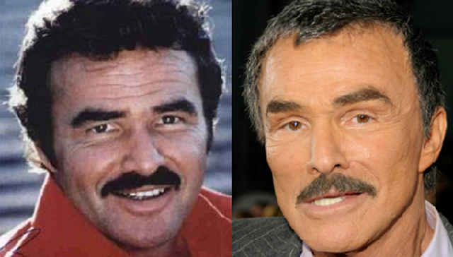 Burt Reynolds Facelift Plastic Surgery Before and After