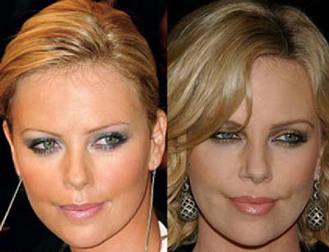 Charlize Theron Nose Job Plastic Surgery Before and After