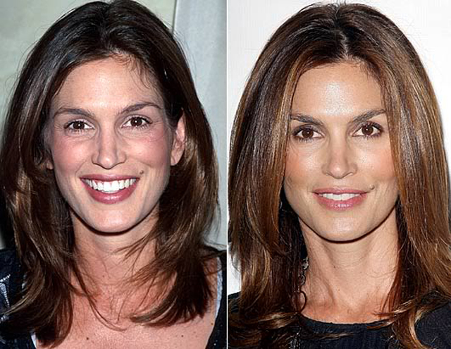 Cindy Crawford Nose Job Plastic Surgery Before and After