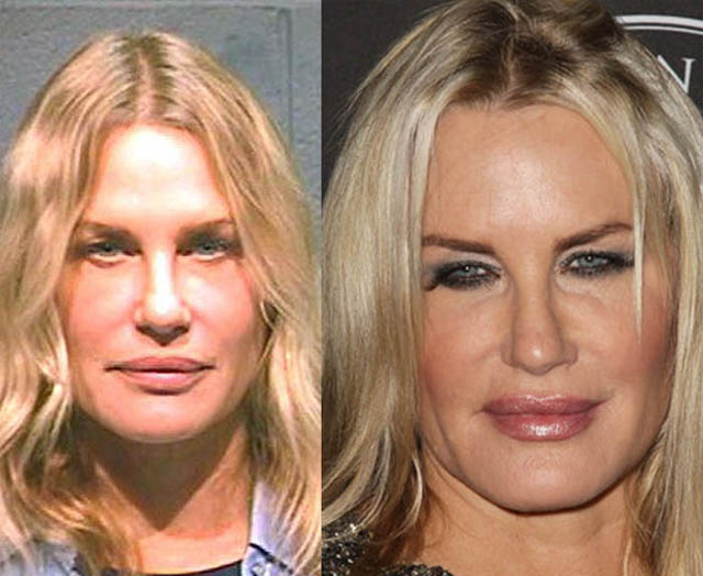 Daryl Hannah Plastic Surgery Before and After Botox Injections