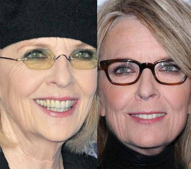 Diane Keaton Nose Job Plastic Surgery Before and After