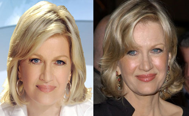 Diane Sawyer Facelift Plastic Surgery Before and After